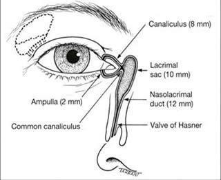 Dacriocistotomografia